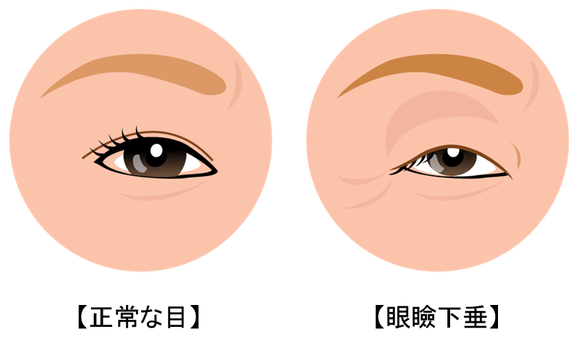 眼瞼下垂の原因