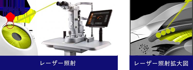 緑内障のレーザー治療(選択的レーザー線維柱帯形成術)