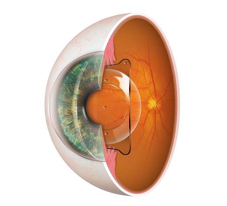 小さなレンズを挿入し視力回復!ICL手術(眼内コンタクトレンズ)に対応