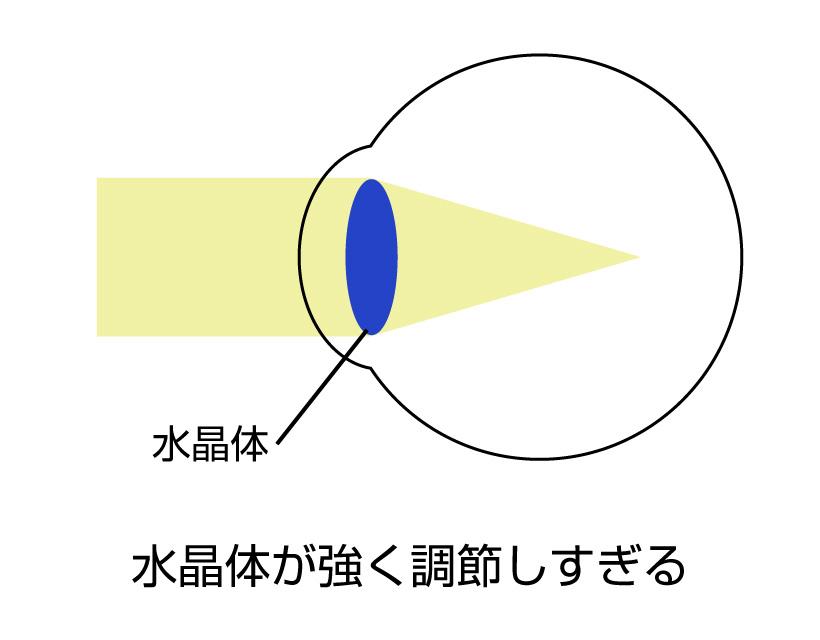 仮性近視(偽近視)