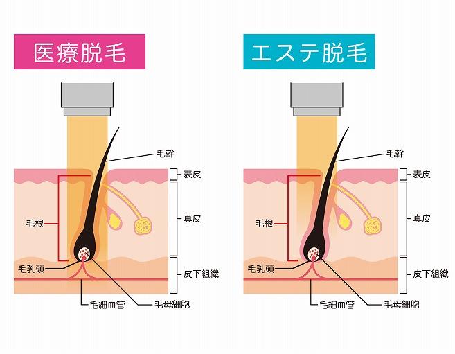 医療脱毛とエステサロンの脱毛の違い