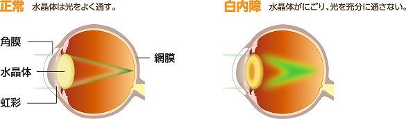目の中の水晶体が濁る白内障