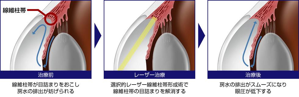 選択的レーザー線維柱帯形成術(SLT)の仕組み