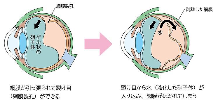 網膜裂孔・網膜剥離