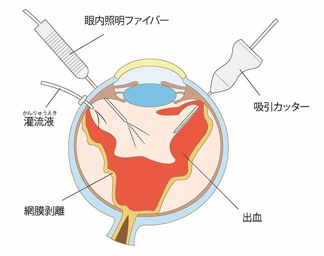 網膜の機能を回復させる硝子体手術